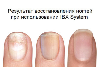 ibx до и после фото